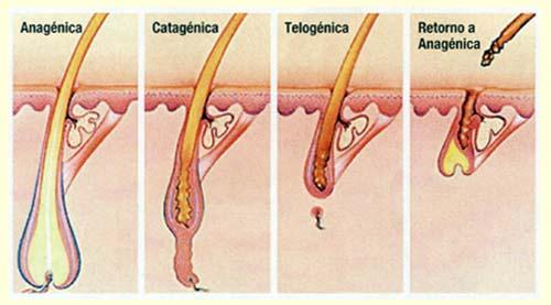 alopecia-causas