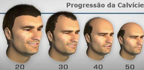 progresso-calvicie