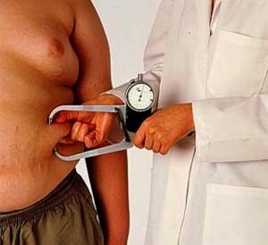 obesidade-grave1-300x275